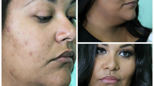 HOW TO COVER CYSTIC ACNE SCARRING  WITHOUT USING FULL COVERAGE MAKEUP