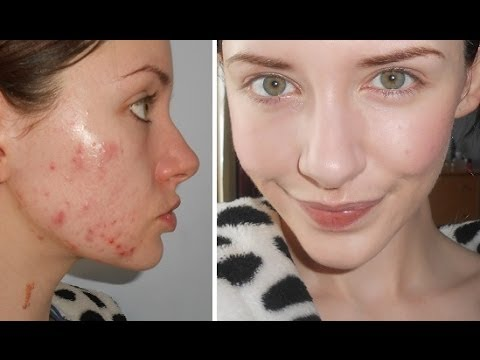 Food + Drink Tips For Acne, My Biggest Trigger (MILK) + Products I've Been Using For Clear Skin!