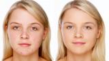 Acne/Blemish Covering Makeup – Foundation & Concealer Tutorial
