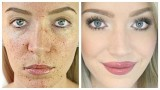 Acne Coverage Foundation Routine (Acne Scarring + Pigmentation)